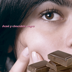 acne-y-chocolate