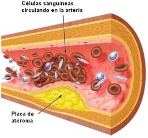 La placa por si misma puede no causar una obstrucción total hasta que se desprende o se produce una trombosis sobre ella