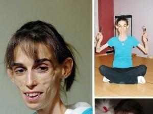 Kate Chilver uno de los casos peores de anorexia conocidos