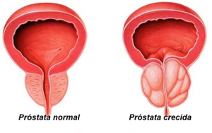 creciiento-prostata
