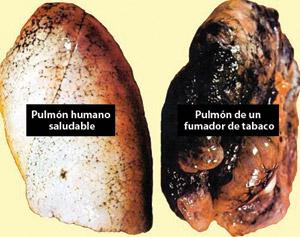 A la izquierda puedes ver un pulmón normal y a la derecha uno de un fumador severo. Puedes notar la diferencia