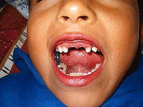 Adoncia parcial secundaria al escorbuto en un niño de Africa