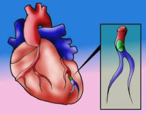 infarto-2