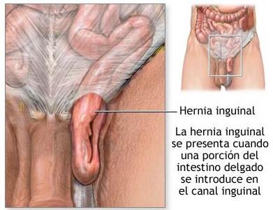 herniainguinal-1