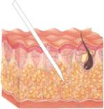 hidrolipoclasia
