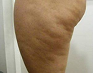 Algunos casos severos se produce lo que conocemos como lipo edema que es más dificil de tratar